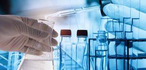 Ανίχνευση αντισωμάτων SARS-COV2 COVID19
